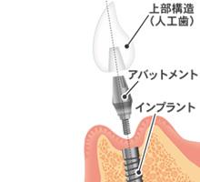 人工歯の作製・装着